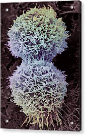 Dividing Cervical Cancer Cell, Sem Acrylic Print by Steve Gschmeissner