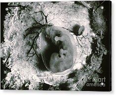 Human Embryo Acrylic Print by Omikron