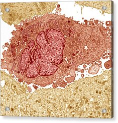 Lung Cancer Cell, Tem Acrylic Print by Steve Gschmeissner