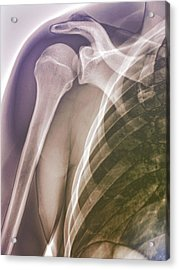 Normal Shoulder, X-ray Acrylic Print by Zephyr