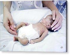Nurse And Premature Baby Acrylic Print