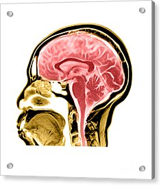 Sagittal View Of An Mri Of The Brain Acrylic Print by Medical Body Scans