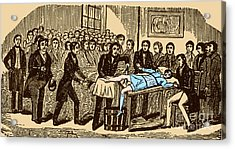 Surgery Without Anesthesia, Pre-1840s Acrylic Print by Science Source