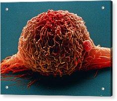 Bladder Cancer Cell, Sem Acrylic Print by Steve Gschmeissner