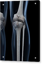 Knee Anatomy, Artwork Acrylic Print by Sciepro