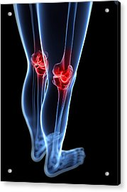 Knee Pain, Conceptual Artwork Acrylic Print by Sciepro