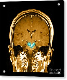 Mri Brainstem Cavernous Malformations Acrylic Print by Medical Body Scans