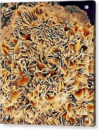 Kidney Stone Crystals, Sem Acrylic Print by Steve Gschmeissner