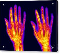 Normal Hand Acrylic Print by Ted Kinsman