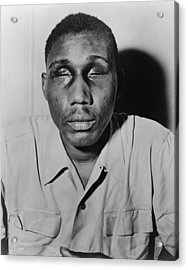 African American Man With Eyes Swollen Acrylic Print by Everett
