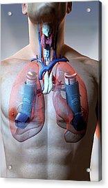 Asthma Acrylic Print by MedicalRF.com