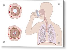 Asthma Pathology And Treatment, Diagram Acrylic Print by Peter Gardiner