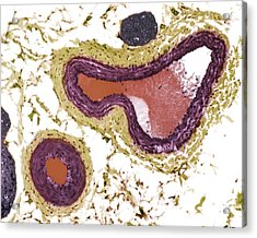 Blood Vessels, Light Micrograph Acrylic Print by Steve Gschmeissner