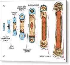 Bone Growth Acrylic Print by Science Source