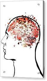 Brain Shattering Acrylic Print by MedicalRF.com