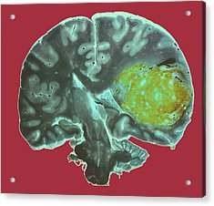Brain Tumour Acrylic Print by Cnri