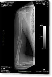 Broken Arm Bone, Digital X-ray Acrylic Print by Du Cane Medical Imaging Ltd