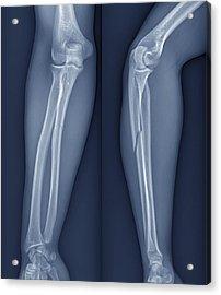 Broken Arm, X-ray Acrylic Print by Zephyr