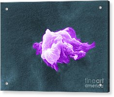 Cancer Cell Death, Sem 6 Of 6 Acrylic Print by Science Source