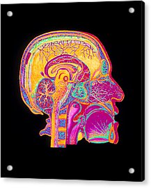 Coloured Illustration Of Sectioned Brain In Head Acrylic Print by Mehau Kulyk