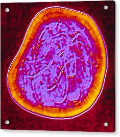 Coloured Tem Of A Rubella (german Measles) Virus Acrylic Print