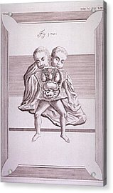 Conjoined Twins With Common Torso Acrylic Print by Everett