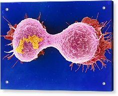 Dividing Breast Cancer Cell Acrylic Print by Steve Gschmeissner