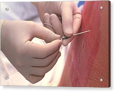 Doctor Inserts Catheter For Epidural Anaesthetic Acrylic Print by David Nunuk