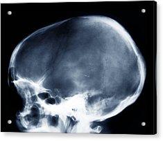 Dolichocephalic Skull Deformity, X-ray Acrylic Print by Zephyr