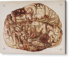 Encircling Gunshot-wound In Brain, 1898 Acrylic Print by Science Source
