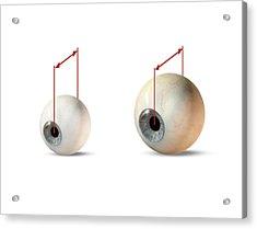 Eye Size Comparison, Artwork Acrylic Print by Claus Lunau