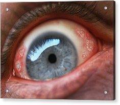 Eyesore Acrylic Print by Baron Dixon