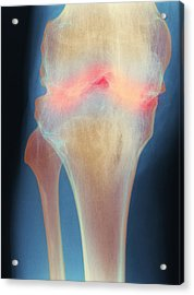 Fused Knee Joint, X-ray Acrylic Print by