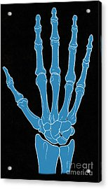 Hand And Wrist Bones Acrylic Print by Science Source