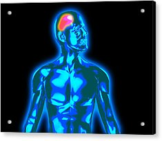 Headache Acrylic Print by Christian Darkin