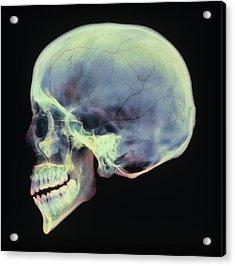 Human Skull, X-ray Acrylic Print by D. Roberts