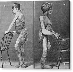 Joseph Merrick 1862-1890, Known Acrylic Print by Everett