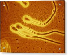 Light Micrograph Of Sperm From A Bull Acrylic Print by Dr T E Thompson