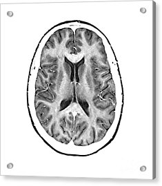 Normal Cross Sectional Mri Of The Brain Acrylic Print by Medical Body Scans