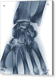 Normal Wrist, X-ray Acrylic Print by Zephyr