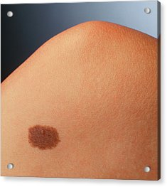 Pigmented Naevus (benign Mole) On A Woman's Knee Acrylic Print by Phil Jude