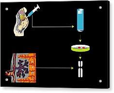 Prenatal Screening, Artwork Acrylic Print by Francis Leroy, Biocosmos