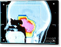 Proton Beam Therapy Acrylic Print by Science Source