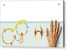 Rheumatoid Arthritis Mechanism, Artwork Acrylic Print by Claus Lunau
