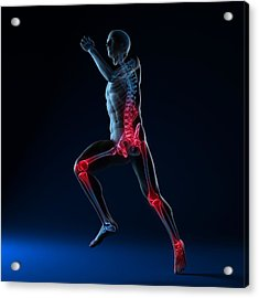 Running Injuries, Conceptual Artwork Acrylic Print by Sciepro