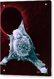 Sem Of Metastasis Acrylic Print by Science Source