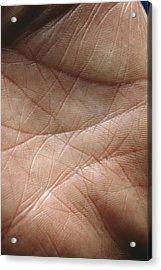 Skin Acrylic Print by Mike Devlin