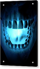 Skull, Teeth And Tongue Acrylic Print by MedicalRF.com