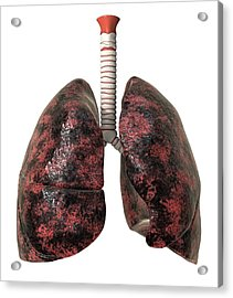 Smoker's Lungs, Artwork Acrylic Print by David Mack