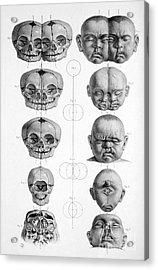 Surgical Anatomy 1856 Acrylic Print by Science Source